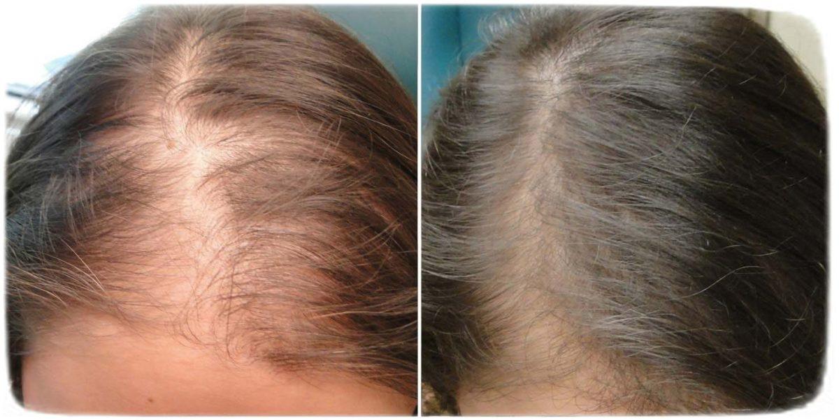 дарсонваль для волос до и после