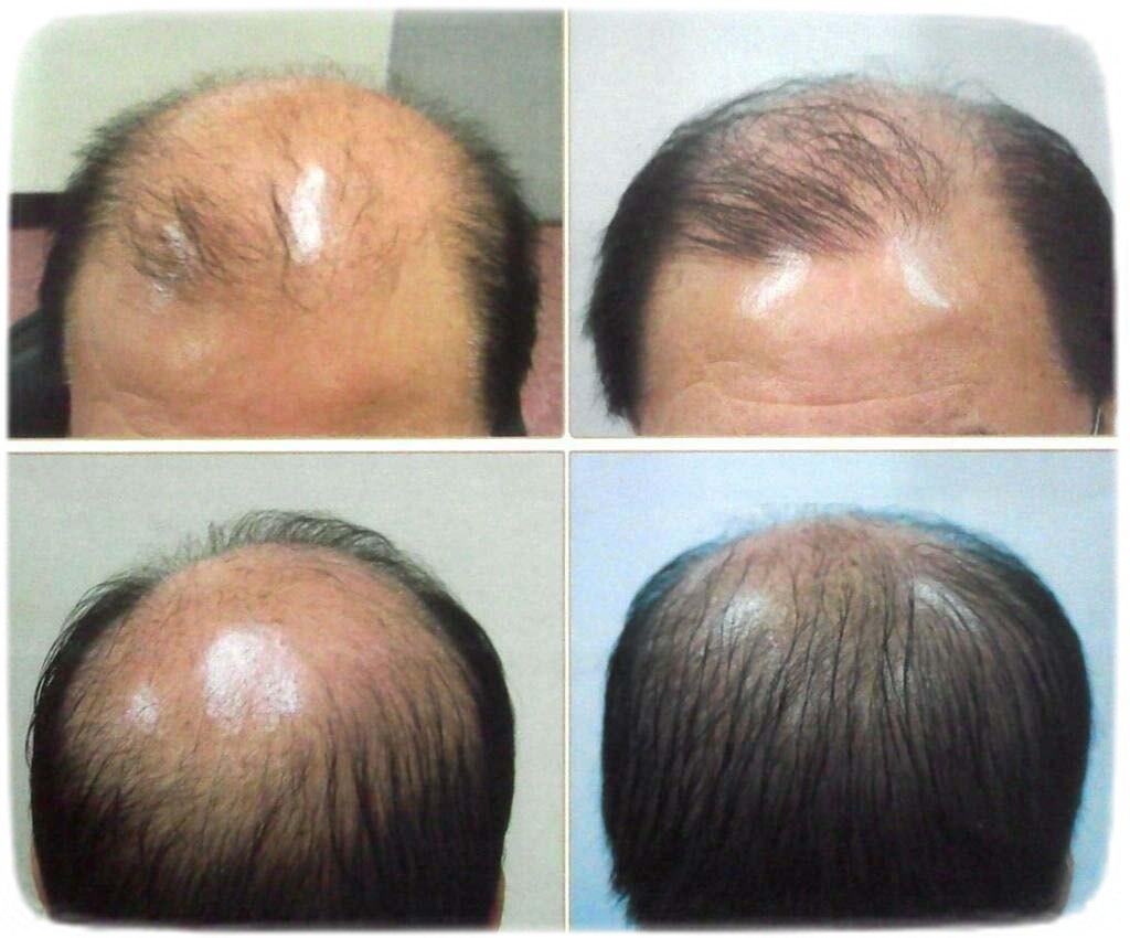 дарсонваль при выпадении волос